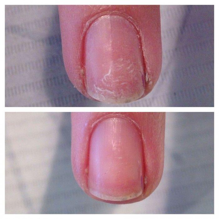 beschadigde nagels worden weer mooi en gezond met een Seal en Protect behandeling bij MyBliss in Balkbrug