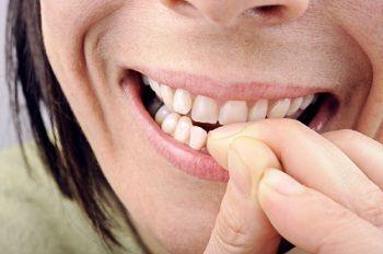 kunstnagels voor nagelbijters mybliss nagelstudio balkbrug overijssel drenthe